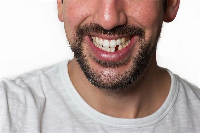Mut zur Lücke muss heute niemand mehr haben - der Haken bei den vielen Möglichkeiten der modernen Zahnmedizin sind allerdings die Kosten.